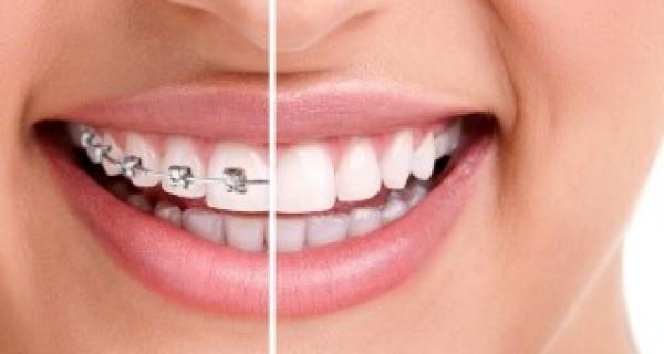 smiles-braces-320×190